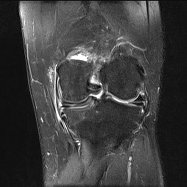 2%20Discoid%20Medial%20meniscus.jpg