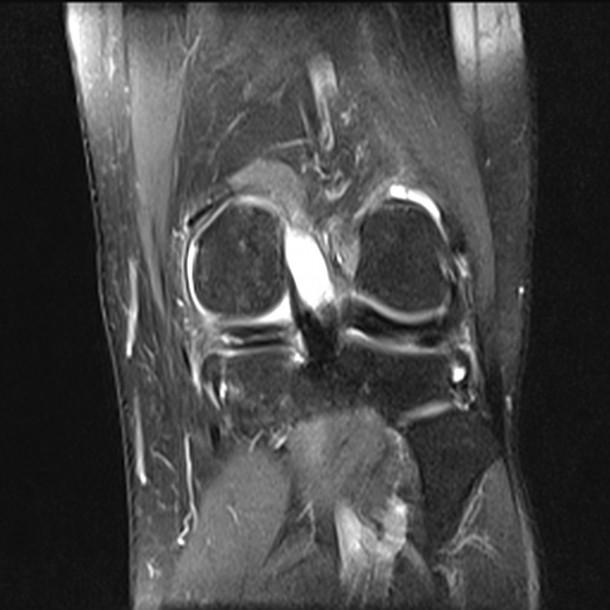 3%20Discoid%20Medial%20meniscus.jpg