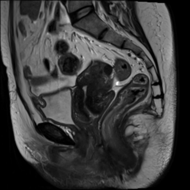 unicornuate-uterus-14-4.jpg